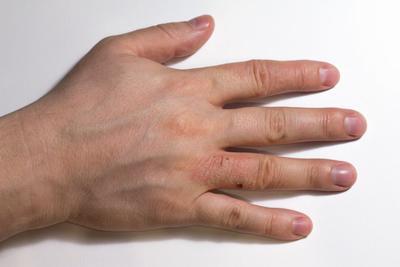 关节病型银屑病与类风湿性关节炎区别