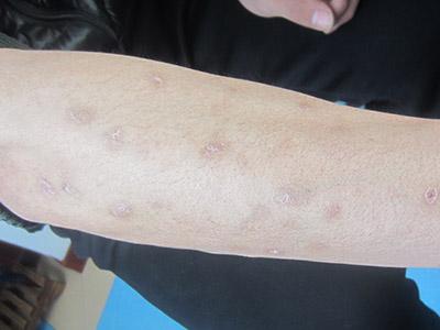 寻常型银屑病怎么会治疗能好