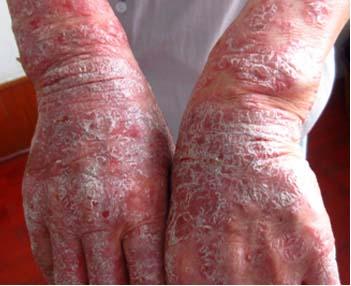手部牛皮癣三年多应该怎么治疗呢